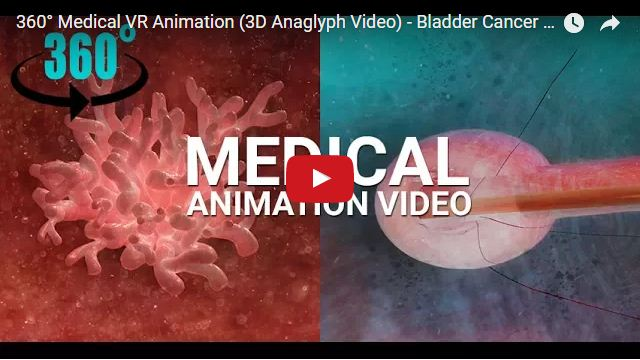 Yantram Studio - 360° Medical VR Animation (3D Anaglyph Video) - Bladder Cancer Tumor Treatment, Texas - USA
