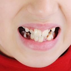 Marietta Childrens Dentist - Dunwoody Childrens Dentist